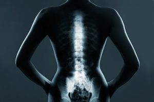 xray of a woman's spine from the back | Milwaukee Spinal Cord Injury Attorneys